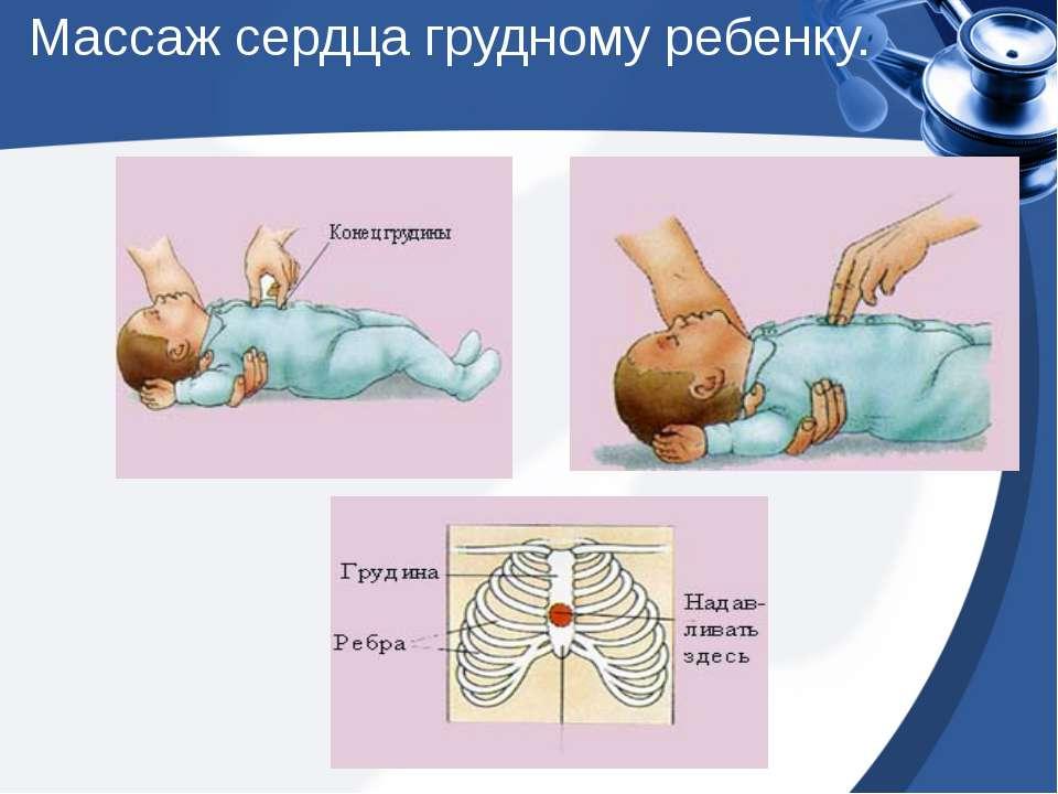 Порядок проведения сердечно-легочной реанимации у детей