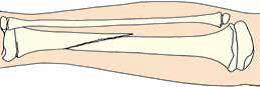 Первая помощь при вывихах и переломах костей - закрытый перелом