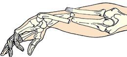 Первая помощь при вывихах и переломах костей - открытый перелом