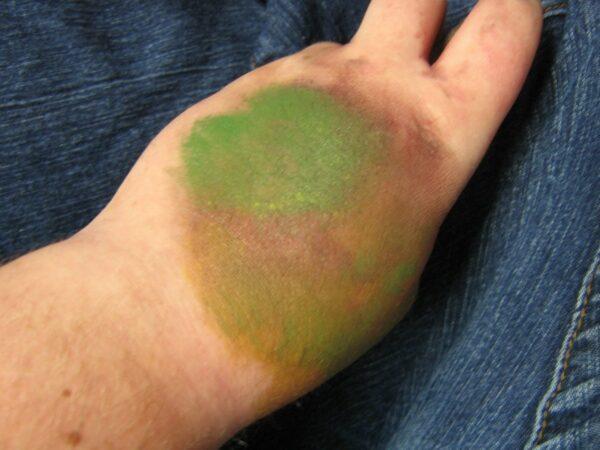 Обожженая кожа меняет цвет
